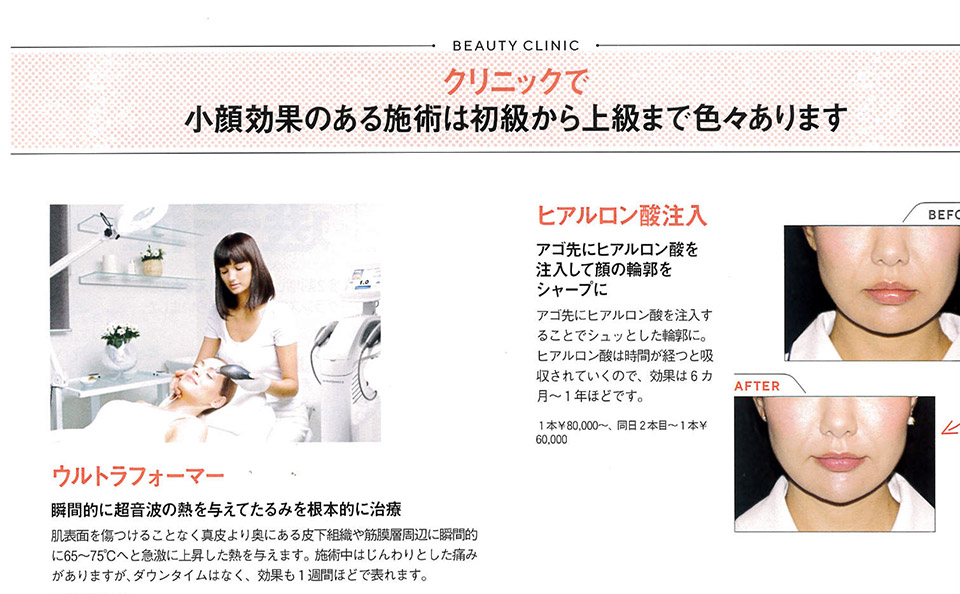 classys_jpcontentimg02